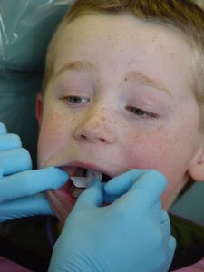 Children with disabilities often deal with special dental problems. For instance,   they are more likely to have gum disease than children without disabilities.