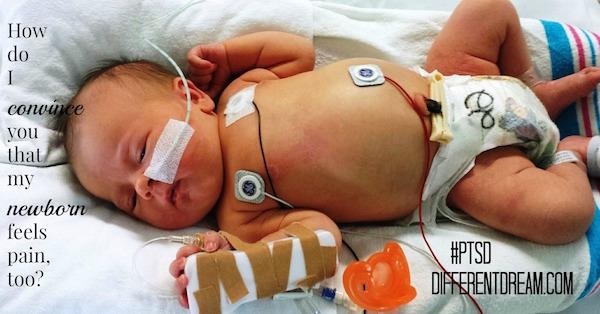 newborns do feel pain