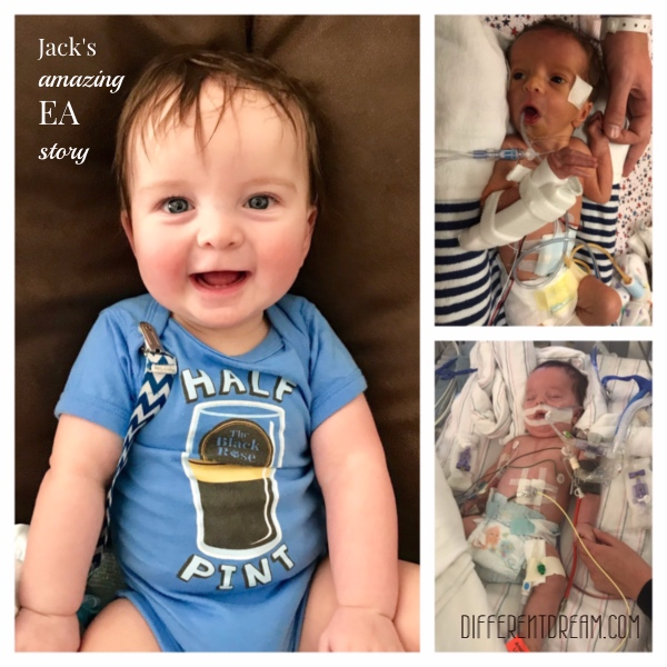 The Cheneys didn't expect their baby's life to be an esophageal atresia story. For EA/TEF Awareness Month, Jen tells the tale of their sons first 8 months.